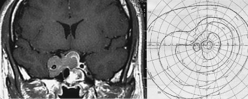 残存、増大下垂体腺腫 視野欠損 5分割で治療