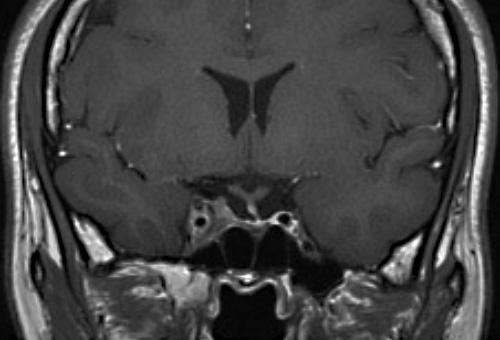 46ヵ月後 腫瘍の著名な縮小