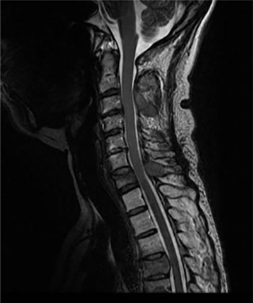 治療時MRI