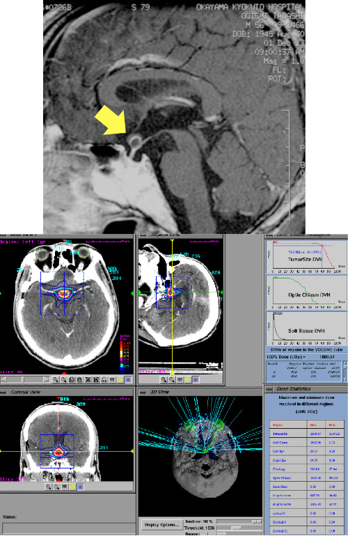 術後再発腫瘍(矢印)に対し一回での治療
