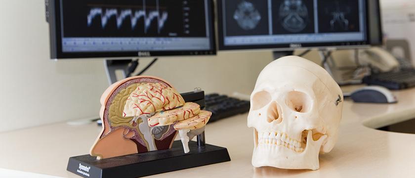 脳神経外科について